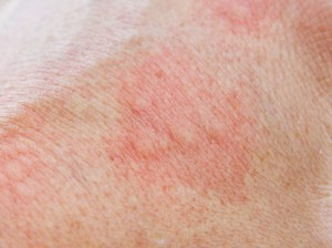Quaddeln äußern sich durch Schwellungen auf der Haut. Unangenehm ist der damit verbundene Juckreiz.